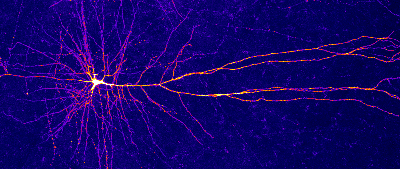 V lidských neuronech vědci objevili mini-počítače – ato je skvělá zpráva pro umělou inteligenci